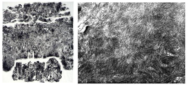 stupia-superficie celular